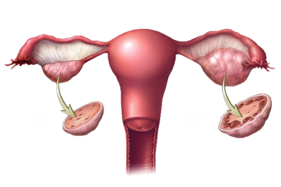 PCOS Affects Every 1-in-10 Women, Are You the 1 (2)